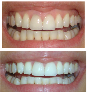 teeth whiten-teeth-crest-white-strips-before-after